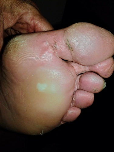 Close up of human foot with blister on ball
