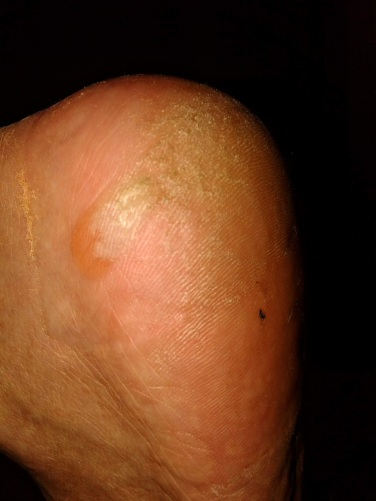 Close up of blistered heel
